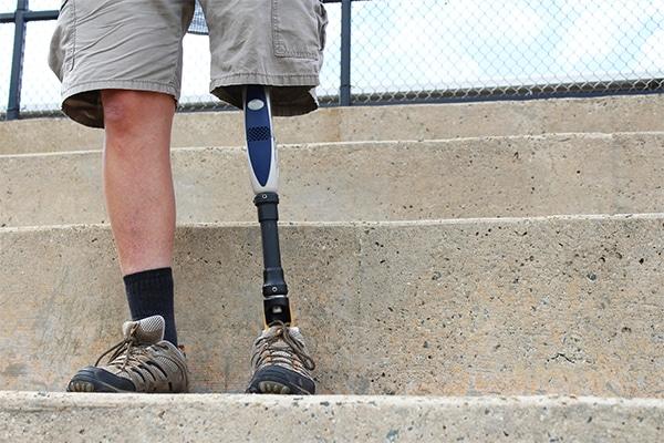 amputated leg