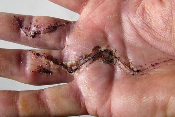 infected hand from a surgical error